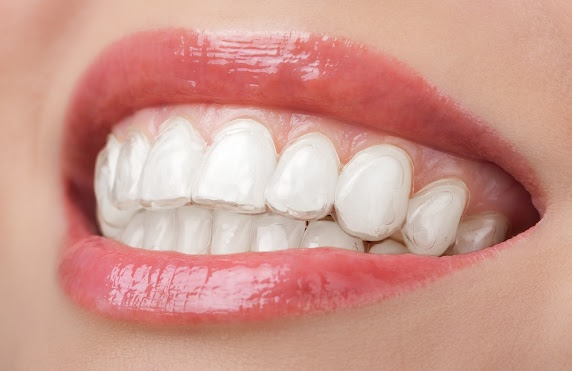 Tips for Getting the Most Out of Your Invisalign Treatment