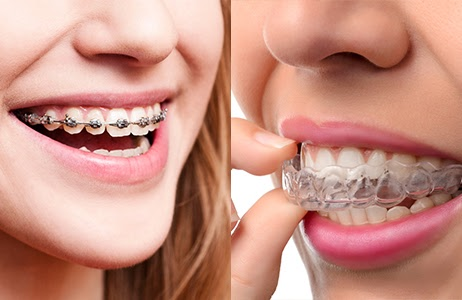 Damon Braces vs. Invisalign: Which Is Right for You?